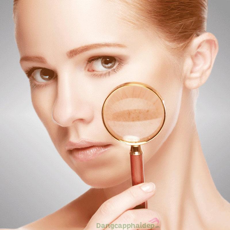 Nám da sau laser là một trong những vấn đề nan giải của chị em