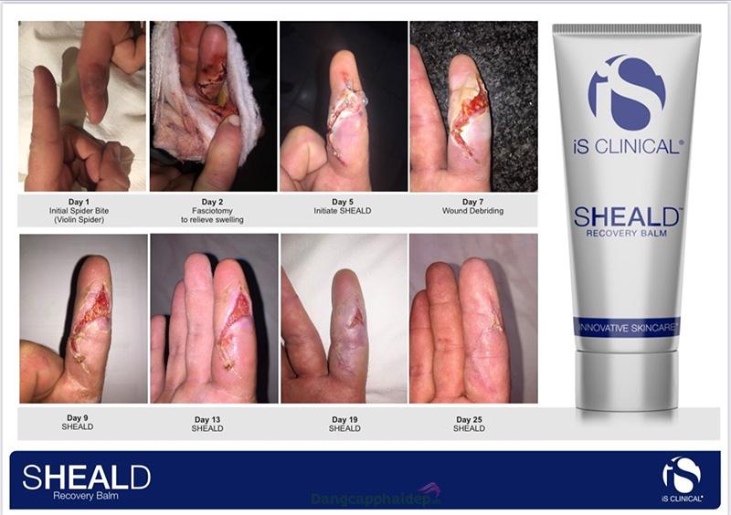iS Clinical Sheald Recovery Balm được tin dùng tại các gia đình Mỹ.