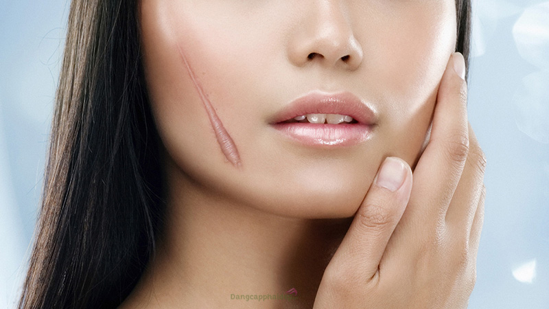 90% vết sẹo hình thành từ vết trầy xước, vết thương hở.