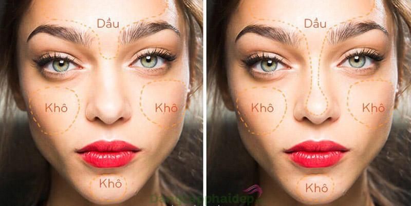Đặc điểm của da hỗn hợp thiên dầu và thiên khô.