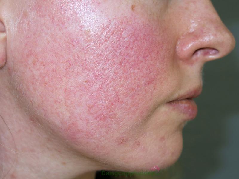 Da ửng đỏ, lộ mao mạch, lỗ chân lông to là biểu hiện của da mỏng.