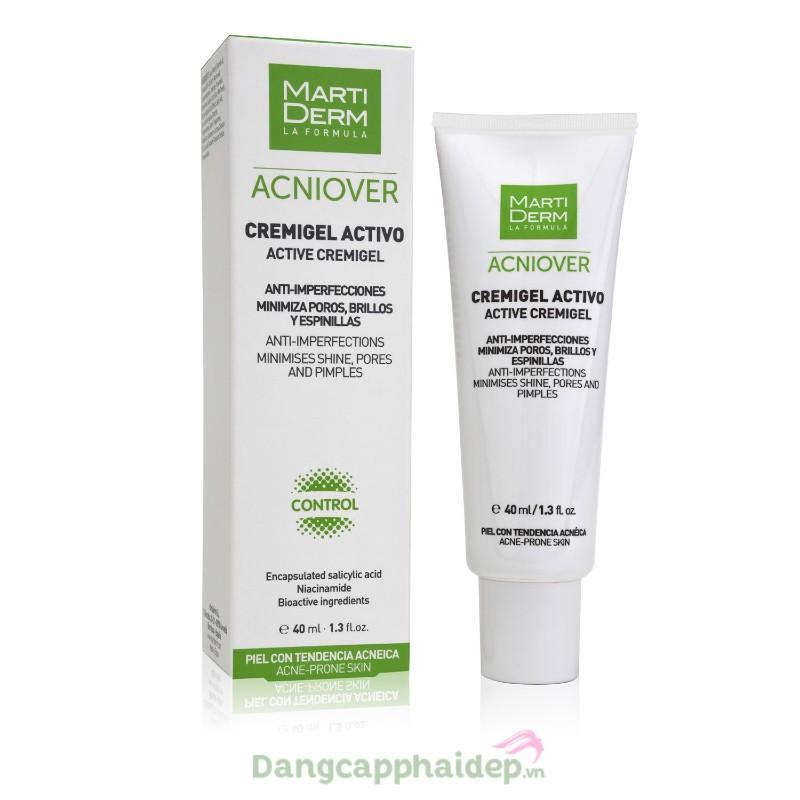 Martiderm Acniover Cremigel Active 40ml - Kem dưỡng giảm nhờn, mụn & se lỗ chân lông