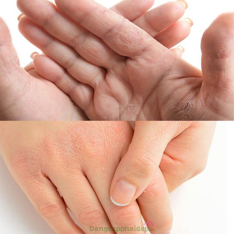 Đừng để đôi tay khô ráp, lão hóa sớm chỉ vì lơ là chăm sóc.