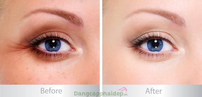 Zo Skin Health Growth Factor Eye Serum
