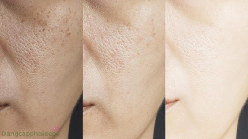 Zo Skin Health Pigment Control + Brightening Crème
