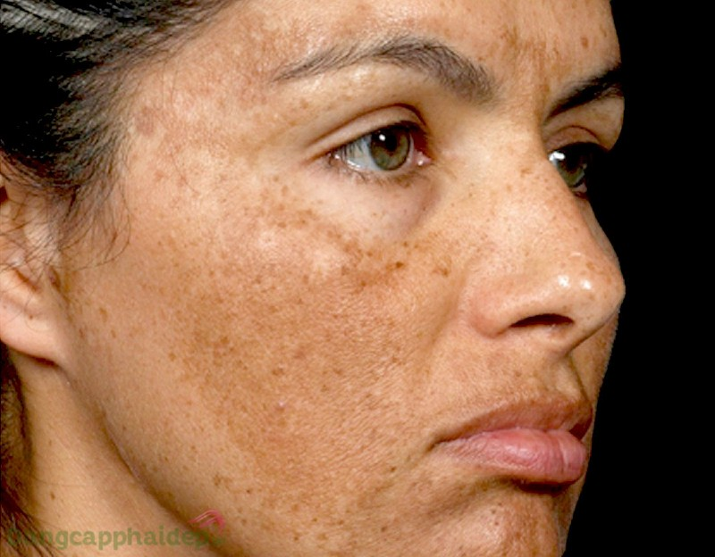 Zo Skin Health Pigment Control + Blending Crème