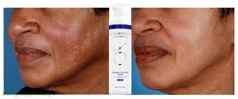 Zo Skin Health Pigment Control Crème
