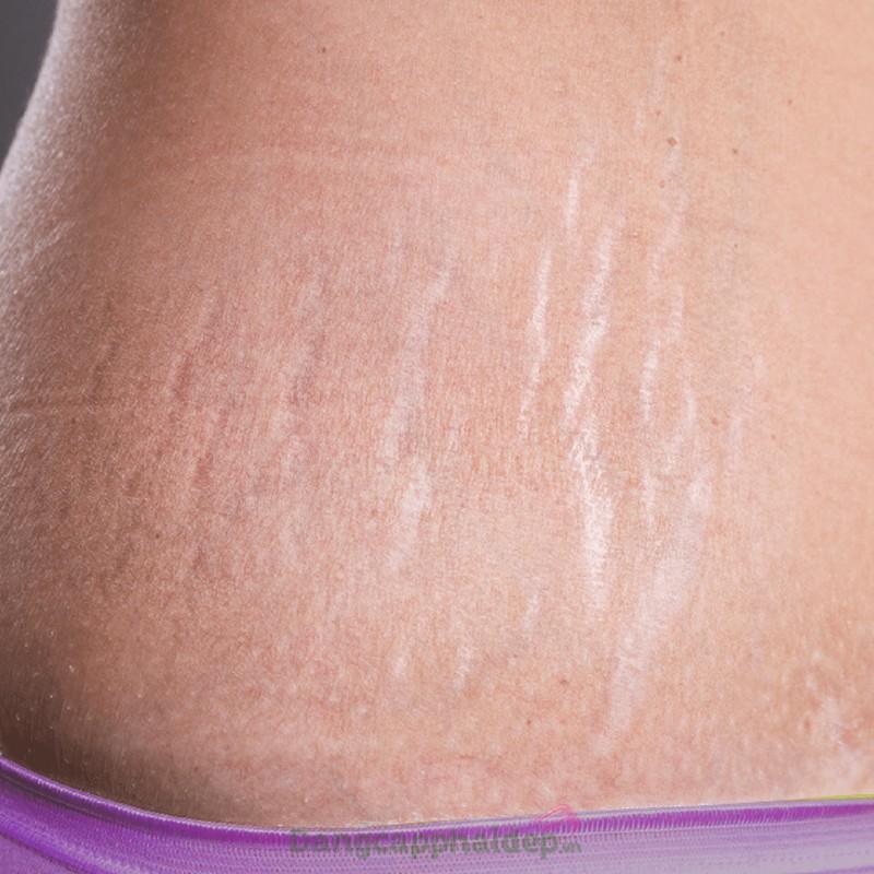 Jean D'Arcel Intense Anti Cellulite Gel