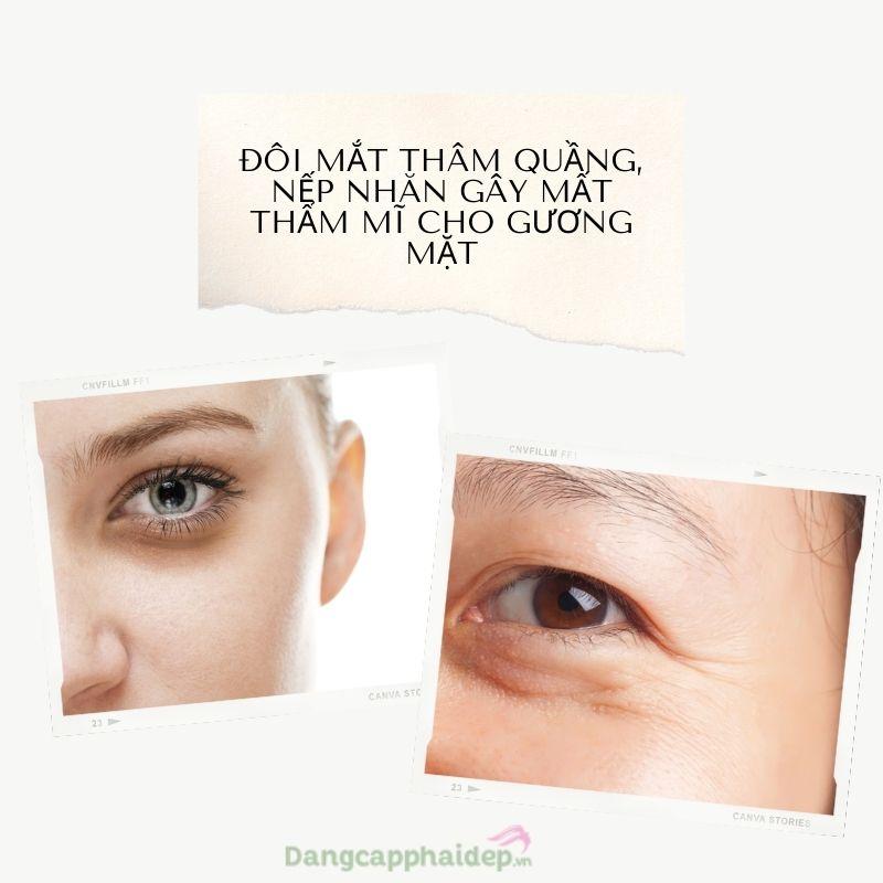 Tổng thể gương mặt xuống cấp trầm trọng chỉ vì đôi mắt thâm quầng, nếp nhăn.