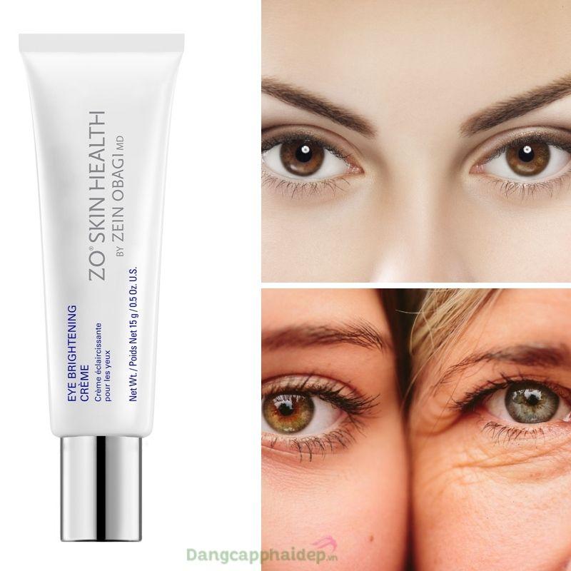Da vùng mắt căng sáng mịn màng khi duy trì sử dụng kem dưỡng mắt mỗi ngày.