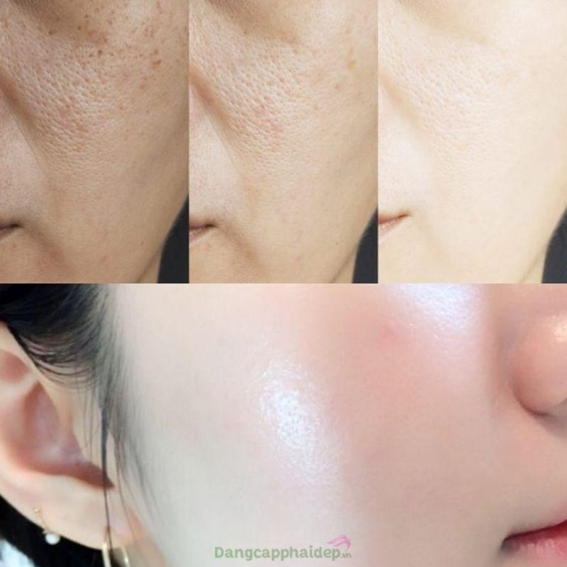 Những công dụng nổi bật của Zo Skin Health Instant Pore Refiner.