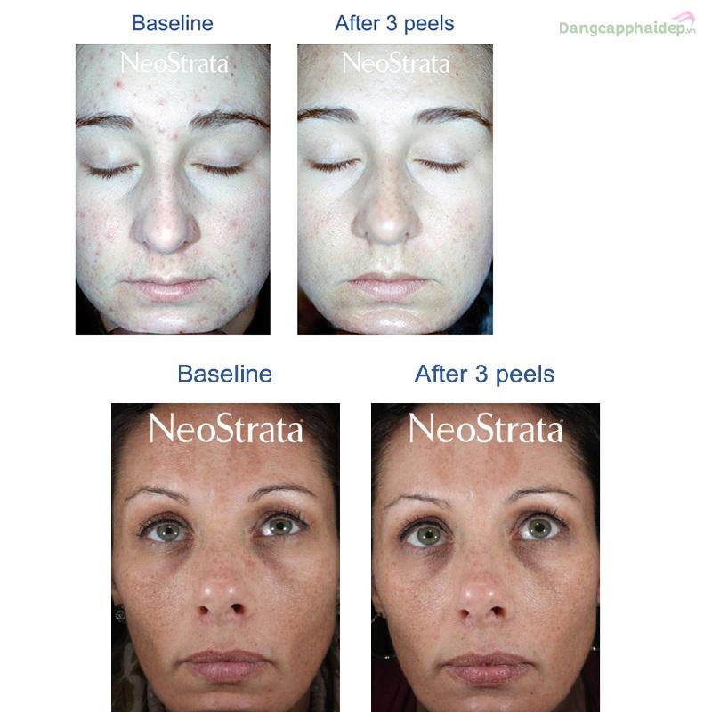 NeoStrata 20% Glycolic Acid Skin Renewal Peel
