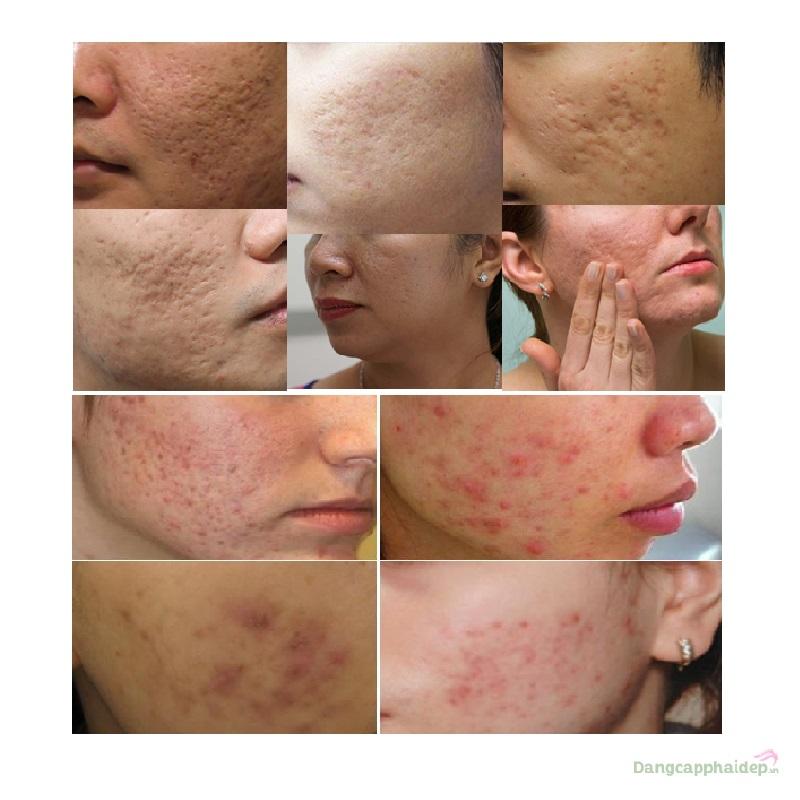 NeoStrata 35% Glycolic Acid Skin Renewal Peel