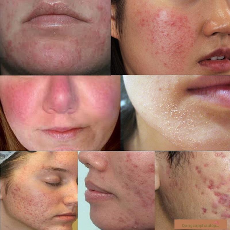 NeoStrata 50% Glycolic Acid Skin Renewal Peel