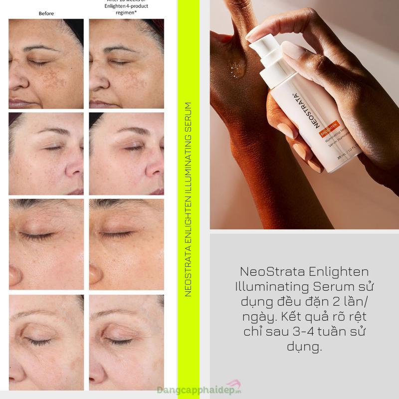"""NeoStrata Enlighten Illuminating Serum điều trị hắc sắc tố, dưỡng sáng da """"thần tốc""""."""