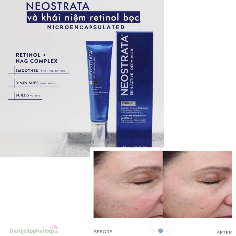 NeoStrata Skin Active Retinol Repair Complex với 0.5% Retinol + 4% NeoGlucosamine tác động kép của hai hợp chất này sẽ giúp thúc đẩy da tái sinh mạnh mẽ.