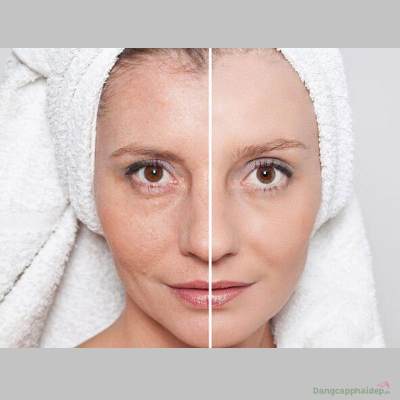 NeoStrata Prosystem Balancing Pre-peel Cleanser